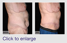 Body Contouring After MWL