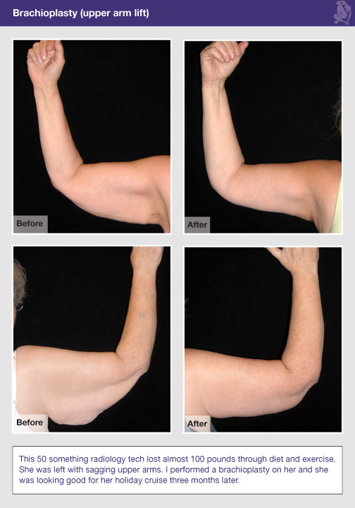 Scars From Upper Arm Lifts : Upper arm lift a k brachioplasty dr lisa sowder