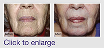 Very Deep Skin Resurfacing