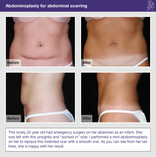 Tummy Tuck A.k.a. Abdominoplasty