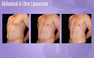 Abdominal + Chest Liposuction