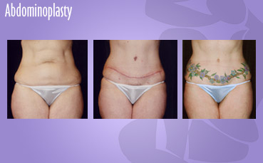 Abdominoplasty by Female Plastic Surgeon in Seattle
