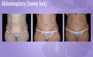 Abdominoplasty, Tummy Tuck