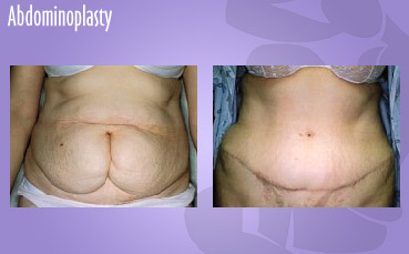 Seatte Tummy Tuck by Seattle Plastic Surgeon