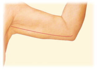 Arm Lift Brachioplasty by Seattle Plastic Surgeon