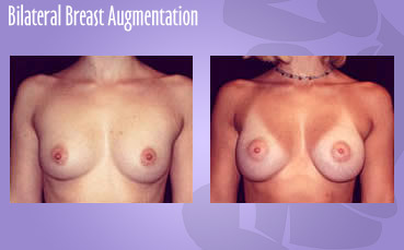 Breast implants by Seattle Plastic Surgeon