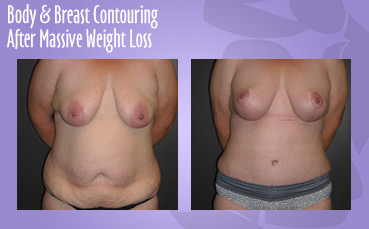 Body + Breast Contour Massive Weight Loss