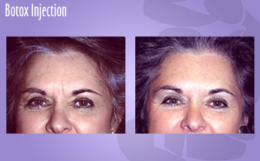 Botox Injection by Seattle Plastic Surgeon, Dr. Lisa Lynn Sowder
