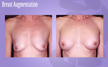 Breast implant surgery by Seattle Plastic Surgeon