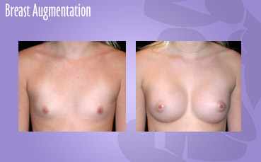 Breast Augmentation by Seattle Plastic Surgeon, Dr. Lisa Lynn Sowder