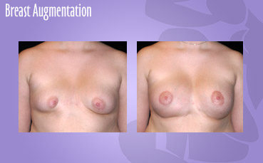 Tuberous Breast asymmetry treatment in Seattle by Seattle Plastic Surgeon