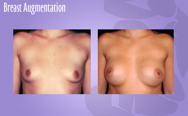 Breast Augmentationn by Seattle Plastic Surgeon, Dr. Lisa Lynn Sowder