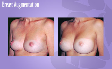 Seattle Breast Augmentation Surgeon