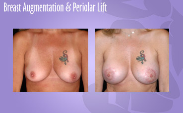 Breast Augmentation and Periolar Lift by Seattle Plastic Surgeon, Dr. Lisa Lynn Sowder