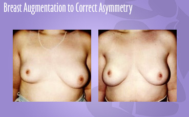 Breast Asymmetry Treatment by Seattle Plastic Surgeon, Dr. Lisa Lynn Sowder
