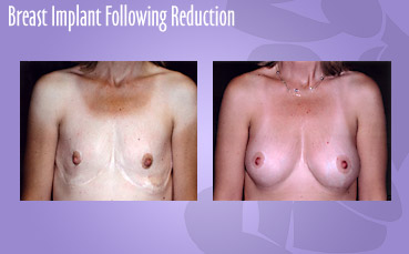 Breast Implant Following Reduction by Seattle Plastic Surgeon, Dr. Lisa Lynn Sowder