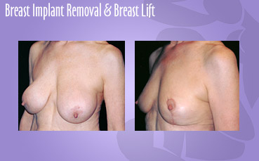 Breast Implant Removal and Breast Lift
