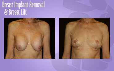 Breast Implant Removal Breast Lift