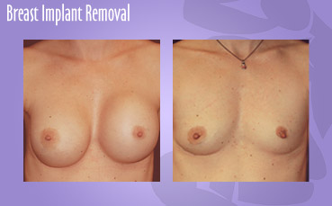 Breast Implant Removal by Seattle Plastic Surgeon, Dr. Lisa Lynn Sowder