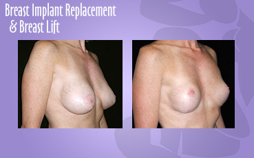 Breast-Implant-Replace-Breast-Lift