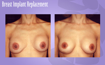 Breast-Implant-Replacement