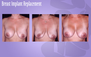 Breast Implant Replacement by Seattle Plastic Surgeon, Dr. Lisa Lynn Sowder