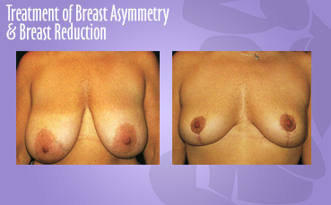 Breast Asymmetry + Reduction