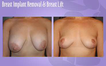 Breast Implant Removal & Breast Lift