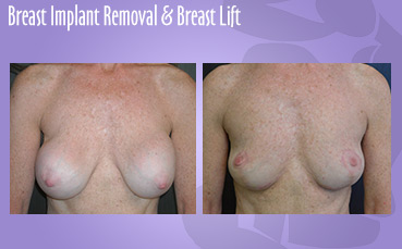 Breast Implant Removal & Lift