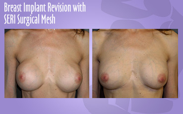 Breast Implant Revision with Seri Surgical Mesh