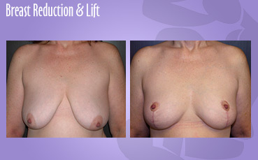 Breast Reduction and Lift