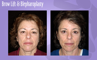 Brow Lift and Blepharoplasty by Seattle Plastic Surgeon