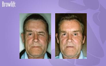 Male Browlift by Seattle Plastic Surgeon, Dr. Lisa Lynn Sowder