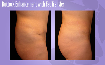 Buttock Enhancement with Fat Transfer