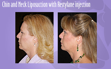 Chin and Neck Liposuction with Restylane Injections by Seattle Plastic Surgeon, Dr. Lisa Lynn Sowder