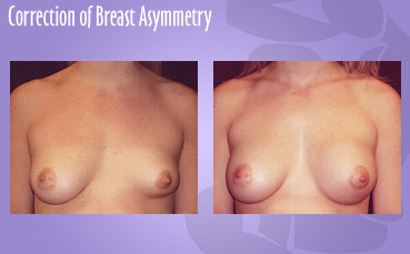 Correction-Breast-Asymmetry with breast implants by Seattle Plastic Surgeon, Dr. Lisa Lynn Sowder