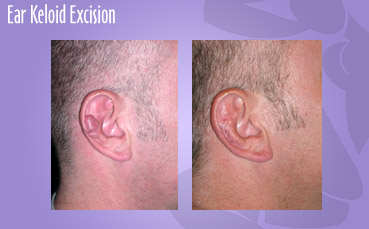 Ear Keloid Excision by Seattle Plastic Surgeon, Dr. Lisa Lynn Sowder