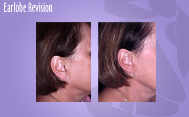 Earlobe Revision by Seattle Plastic Surgeon, Dr. Lisa Lynn Sowder