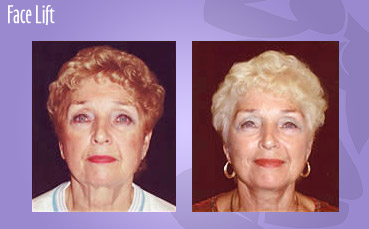 Face Lift by Seattle Plastic Surgeon, Dr. Lisa Lynn Sowder