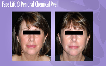 Facelift and perioral chemical peel