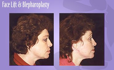 Facelift with Blepharoplasty by Seattle Plastic Surgeon, Dr. Lisa Lynn Sowder