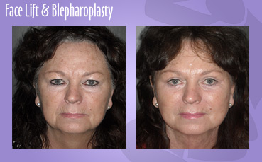 Face lift, eyelid surgery