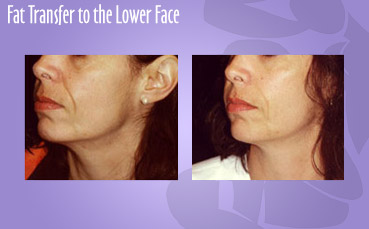 Fat Transfer to the Lower Face