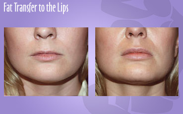 Fat Transfer to Lips