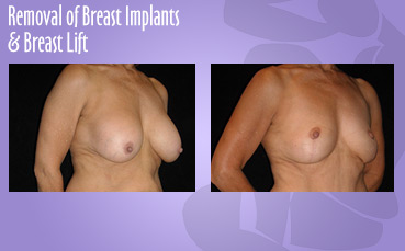 Implant Removal & Lift