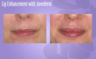 Lip Enhancement with Juvederm