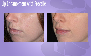 Lip enhancement with Prevelle