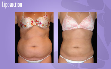 Liposuction by Seattle Plastic Surgeon, Dr. Lisa Lynn Sowder