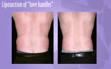 Liposuction of male love handles by Seattle Plastic Surgeon
