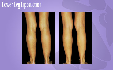 Lower Leg Liposuction